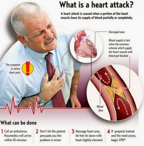 Symptoms-and-diagnosis-of-heart-attack